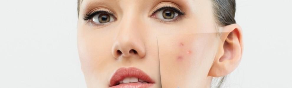 Как да се справим с пигментните петна (кожни, хормонални проблеми и др.)-7